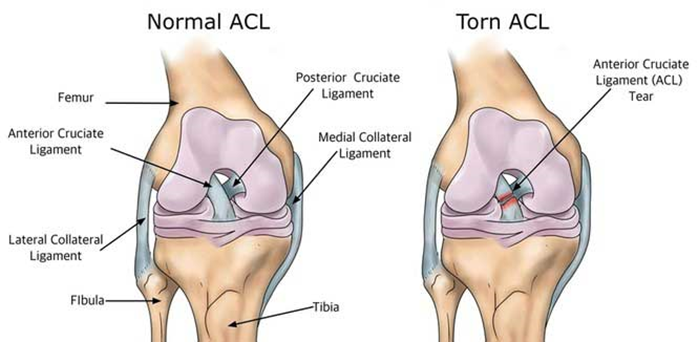 Illustration of a normal and a torn ACL (Anterior Cruciate Ligament) in the knee.